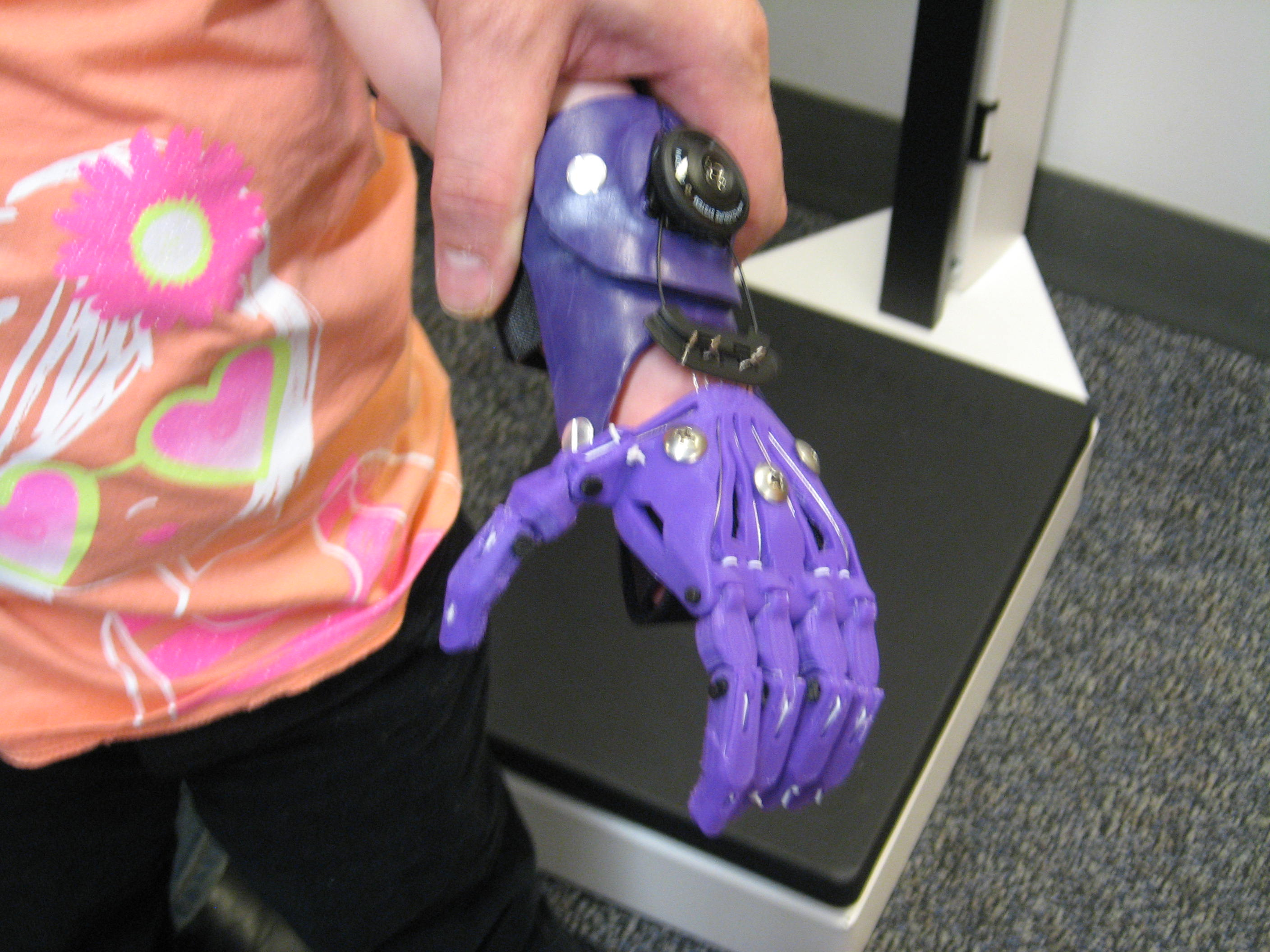 Cyborg Beast, 3D printed prosthetic hand, Creighton Lab, Upper limb differences